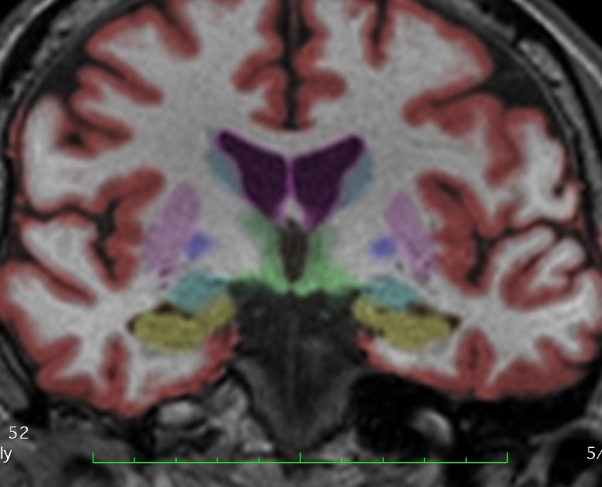 MRI for carbon monoxide diagnosis