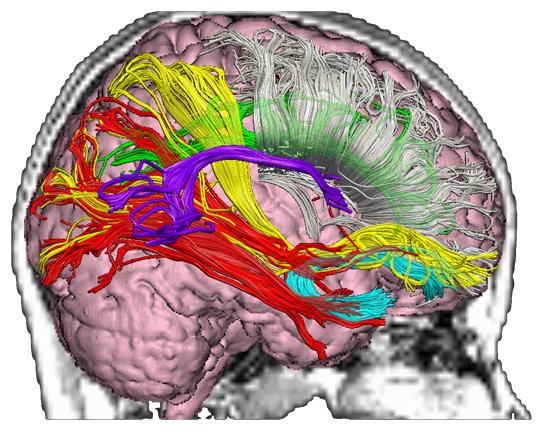 mild traumatic brain injury rehab